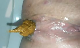 Yellow poop stuck in her ass